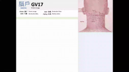 05 - GV17 a GV18
