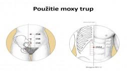 03 - Teória a prax moxovania